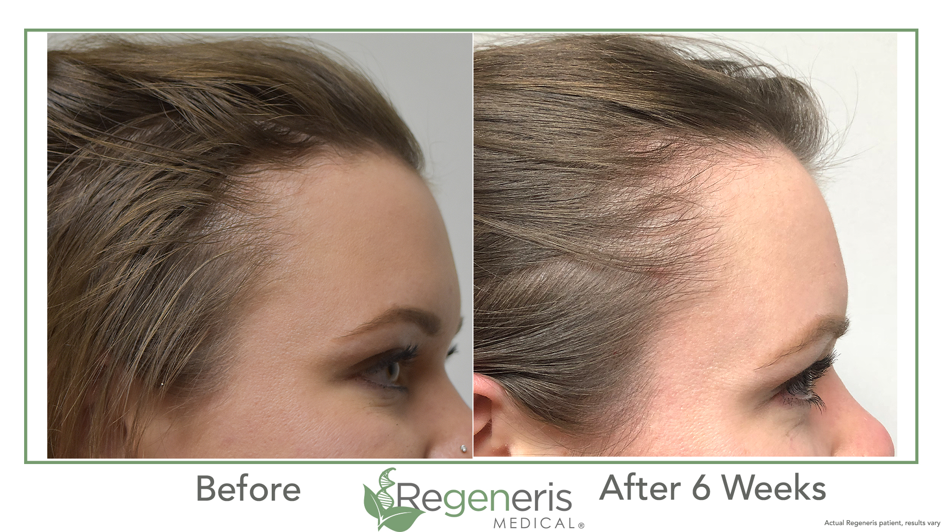 Regeneris HD PRP with Acell - PRP has become a mainstay for slowing hair loss and growing new hair for both men and women, but High Density (HD) PRP has become the new standard thanks to Dr. Welter and the pioneering research of the Regeneris Medical team. Regeneris physicians have performed thousands of HD PRP procedures with outstanding results. The Regeneris HD PRP proprietary technology uses the highest concentration of platelets to ensure an effective burst of growth factors. Peaking at 18 months on average and lasting longer, the Regeneris HD PRP outperforms standard PRP which must be repeated and maintained every 3-4 months.