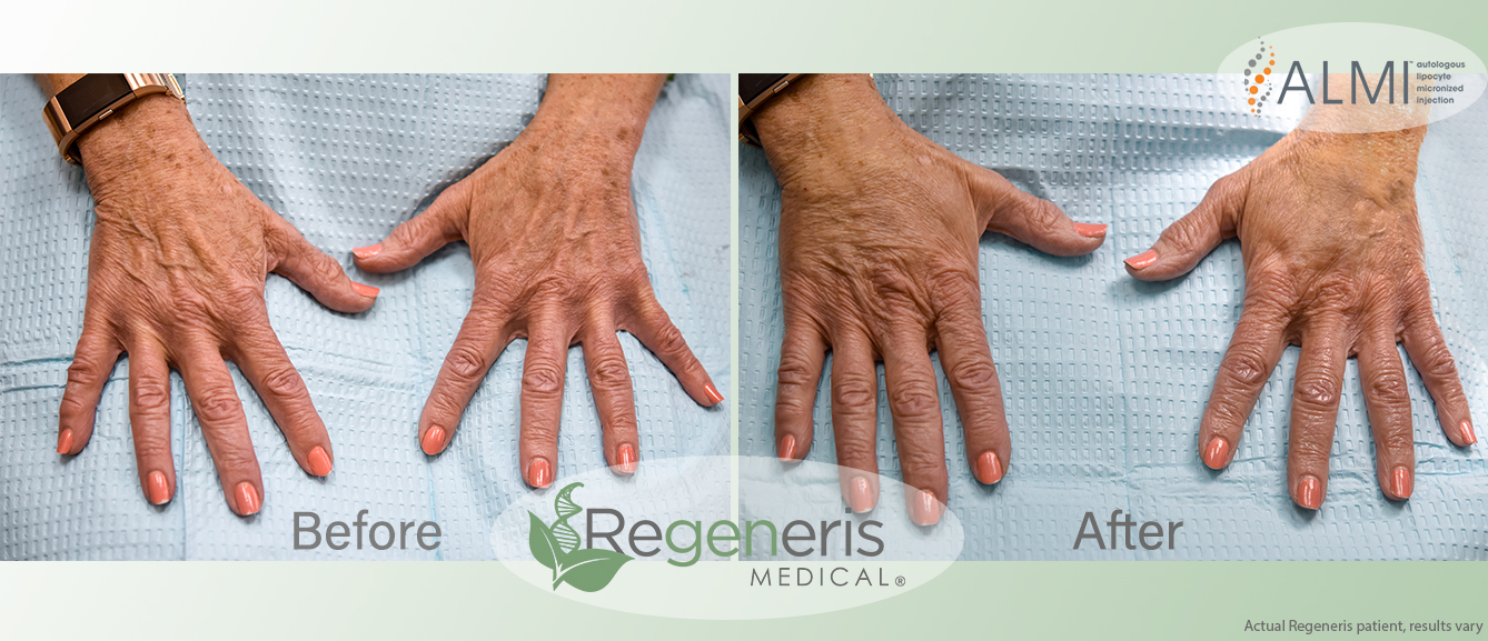 Benefits of the Regeneris Hand Rejuvenation - Minimally invasive, non-surgical procedureYour own natural body fat is used to restore a more natural appearanceMinimal allergy riskLong lasting resultsMinimal recovery or downtimeFat transfer is recommended to rejuvenate:Aged skin around the hand area