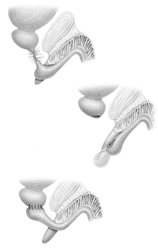 Schematic of Urethral Reconstruction