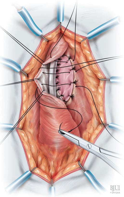 Doral Onlay Buccal Mucosal Urethroplasty