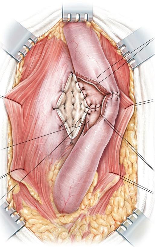 Augmented Anastomotic Buccal Mucosal Urethroplasty