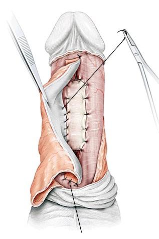 Fasciocutaneous flap Urethroplasty
