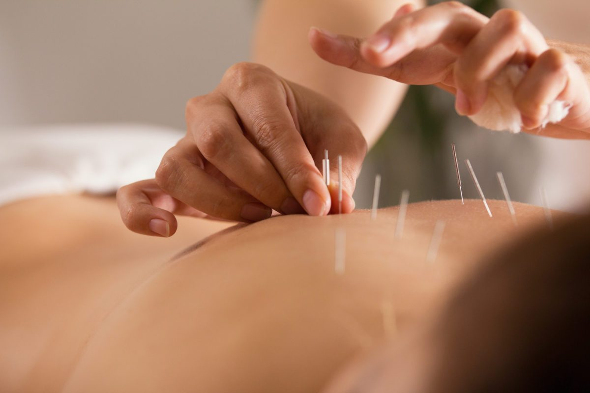 acupuncture-for-lower-back-pain-1200x800.jpeg