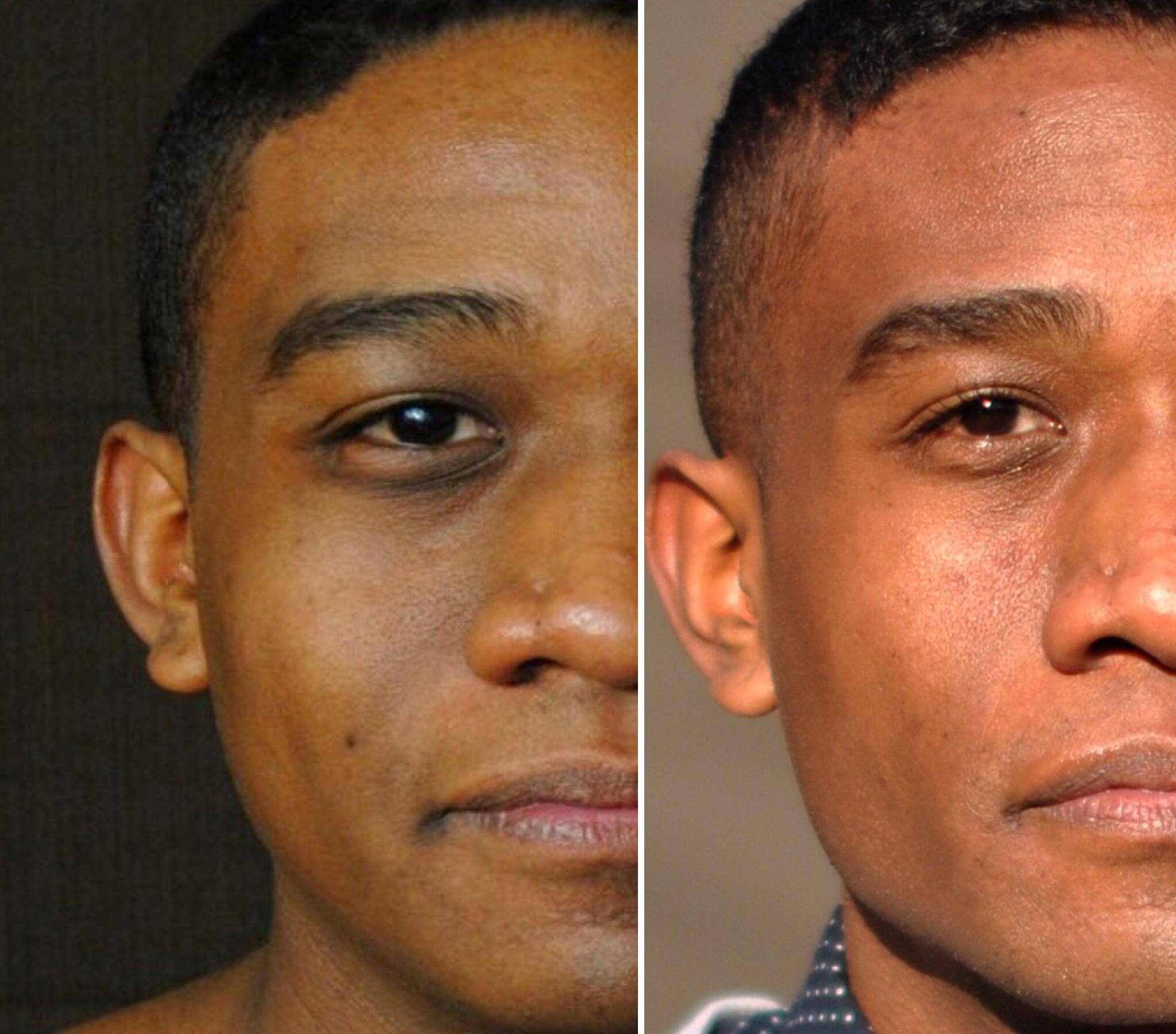 Left: Age 24 // Right: Age 29