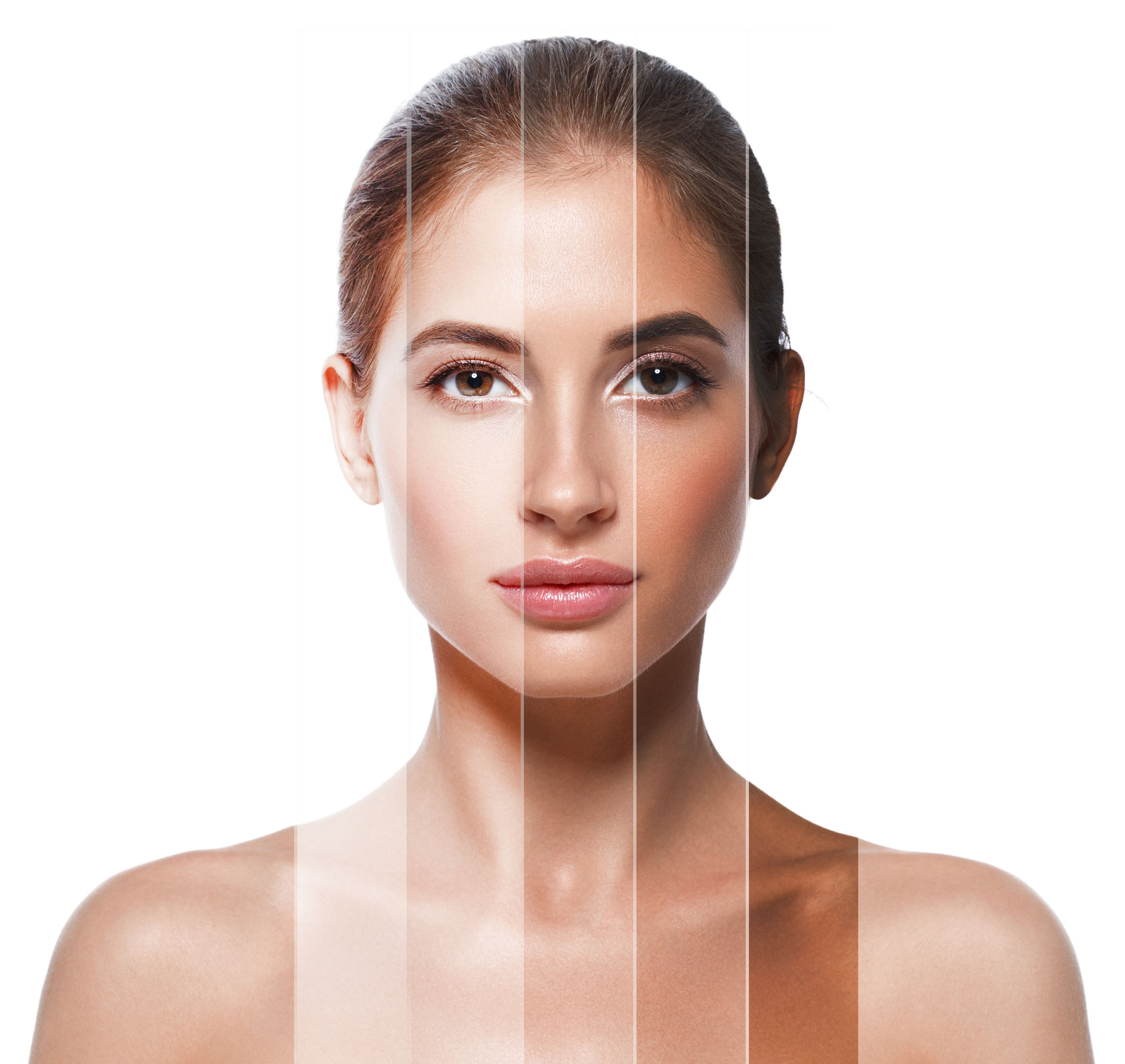 - Sun Damage, Acne and Melasma are not isolated issues. Problematic skin conditions can occur on all areas of the body.