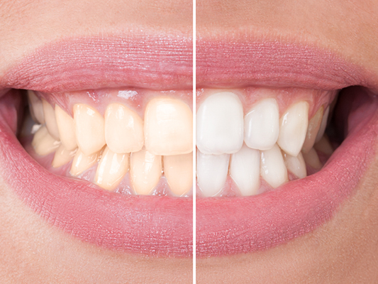 Ankeny Dental Arts provides teeth whitening services.