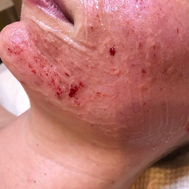 "Feeling hot 🔥 hot 🔥 hot 🔥 ⠀⠀⠀⠀⠀⠀⠀⠀⠀ Perfect erythema (redness) and pin point bleeding 💉 just what we are looking for with scar revision and saying goodbye to some pesky little breakouts 💥 ⠀⠀⠀⠀⠀⠀⠀⠀⠀ When it comes to skin needling lots of blood and ""deep needles"" does not always mean better results or a better treatment. In actual fact it can cause unnecessary trauma and downtime that the skin doesn't need. ⠀⠀⠀⠀⠀⠀⠀⠀⠀ Out techniques are specific to each clients needs and to keep the integrity of your skin healthy! This always makes results super AMAZING 🌈🙋‍♀️ ⠀⠀⠀⠀⠀⠀⠀⠀⠀ ✨H A P P Y  S K I N  L I V E S  H E R E✨ ⠀⠀⠀⠀⠀⠀⠀⠀⠀ ⠀⠀⠀⠀⠀⠀⠀⠀⠀ ⠀⠀⠀⠀⠀⠀⠀⠀⠀ ⠀⠀⠀⠀⠀⠀⠀⠀⠀ ⠀⠀⠀⠀⠀⠀⠀⠀⠀ ⠀⠀⠀⠀⠀⠀⠀⠀⠀ ⠀⠀⠀⠀⠀⠀⠀⠀⠀ ⠀⠀⠀⠀⠀⠀⠀⠀⠀ ⠀⠀⠀⠀⠀⠀⠀⠀⠀ ⠀⠀⠀⠀⠀⠀⠀⠀⠀ ⠀⠀⠀⠀⠀⠀⠀⠀⠀ ⠀⠀⠀⠀⠀⠀⠀⠀⠀ ⠀⠀⠀⠀⠀⠀⠀⠀⠀ ⠀⠀⠀⠀⠀⠀⠀⠀⠀ ⠀⠀⠀⠀⠀⠀⠀⠀⠀ ⠀⠀⠀⠀⠀⠀⠀⠀⠀ ⠀⠀⠀⠀⠀⠀⠀⠀⠀ ⠀⠀⠀⠀⠀⠀⠀⠀⠀ ⠀⠀⠀⠀⠀⠀⠀⠀⠀ ⠀⠀⠀⠀⠀⠀⠀⠀⠀ ⠀⠀⠀⠀⠀⠀⠀⠀⠀ ⠀⠀⠀⠀⠀⠀⠀⠀⠀ ⠀⠀⠀⠀⠀⠀⠀⠀⠀ ⠀⠀⠀⠀⠀⠀⠀⠀⠀ ⠀⠀⠀⠀⠀⠀⠀⠀⠀ ⠀⠀⠀⠀⠀⠀⠀⠀⠀ #bestskin #bestskintreatment #favouritetreatment #skinneedling #skineducation #skintherapy #collageninduction #skinneedlingspecialty #skintherpist #chaningthefaceofbeauty #happyskinliveshere #auckland #moodskin"