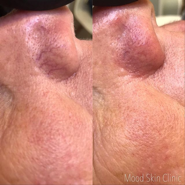 💥 BOOM 💥  And just like that they are gone 👏👏👏 ⠀⠀⠀⠀⠀⠀⠀⠀⠀ Our excel V is the gold class standard of lasers for vascular and pigment and produces the more EPIC results!!! ⠀⠀⠀⠀⠀⠀⠀⠀⠀ We are in love with how it's transforming our clients skin and refining our results even more ✨🙌💁‍♀️ ⠀⠀⠀⠀⠀⠀⠀⠀⠀ ⠀⠀⠀⠀⠀⠀⠀⠀⠀ ⠀⠀⠀⠀⠀⠀⠀⠀⠀ ⠀⠀⠀⠀⠀⠀⠀⠀⠀ ⠀⠀⠀⠀⠀⠀⠀⠀⠀ ⠀⠀⠀⠀⠀⠀⠀⠀⠀ ⠀⠀⠀⠀⠀⠀⠀⠀⠀ ⠀⠀⠀⠀⠀⠀⠀⠀⠀ ⠀⠀⠀⠀⠀⠀⠀⠀⠀ ⠀⠀⠀⠀⠀⠀⠀⠀⠀ ⠀⠀⠀⠀⠀⠀⠀⠀⠀ ⠀⠀⠀⠀⠀⠀⠀⠀⠀ ⠀⠀⠀⠀⠀⠀⠀⠀⠀ ⠀⠀⠀⠀⠀⠀⠀⠀⠀ ⠀⠀⠀⠀⠀⠀⠀⠀⠀ ⠀⠀⠀⠀⠀⠀⠀⠀⠀ ⠀⠀⠀⠀⠀⠀⠀⠀⠀ ⠀⠀⠀⠀⠀⠀⠀⠀⠀ ⠀⠀⠀⠀⠀⠀⠀⠀⠀ ⠀⠀⠀⠀⠀⠀⠀⠀⠀ ⠀⠀⠀⠀⠀⠀⠀⠀⠀ ⠀⠀⠀⠀⠀⠀⠀⠀⠀ ⠀⠀⠀⠀⠀⠀⠀⠀⠀ ⠀⠀⠀⠀⠀⠀⠀⠀⠀ ⠀⠀⠀⠀⠀⠀⠀⠀⠀ ⠀⠀⠀⠀⠀⠀⠀⠀⠀ ⠀⠀⠀⠀⠀⠀⠀⠀⠀ #nofilter #excelv #cutera #goldstandard #gamechanger #lasergenisis #skintherapy #facial #lovemyjob #passion #results #progressnotperfection #aucklandbeauty #moodskinclinic #moodskintribe #