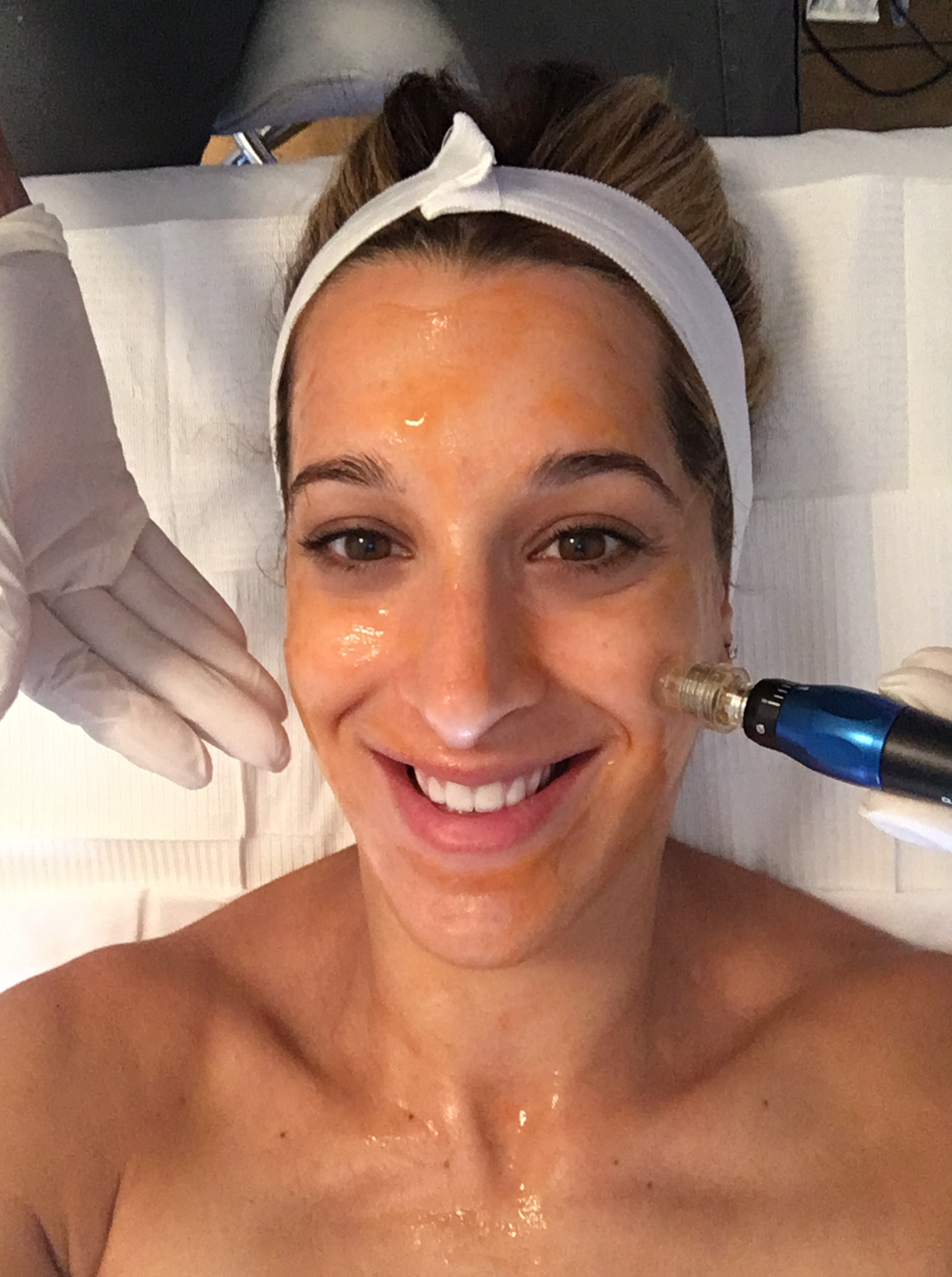We Tried It: Microneedling with Mashell Tabe - READ MORE