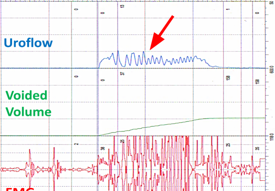 A urine flow profile with LUT, staccato flow.