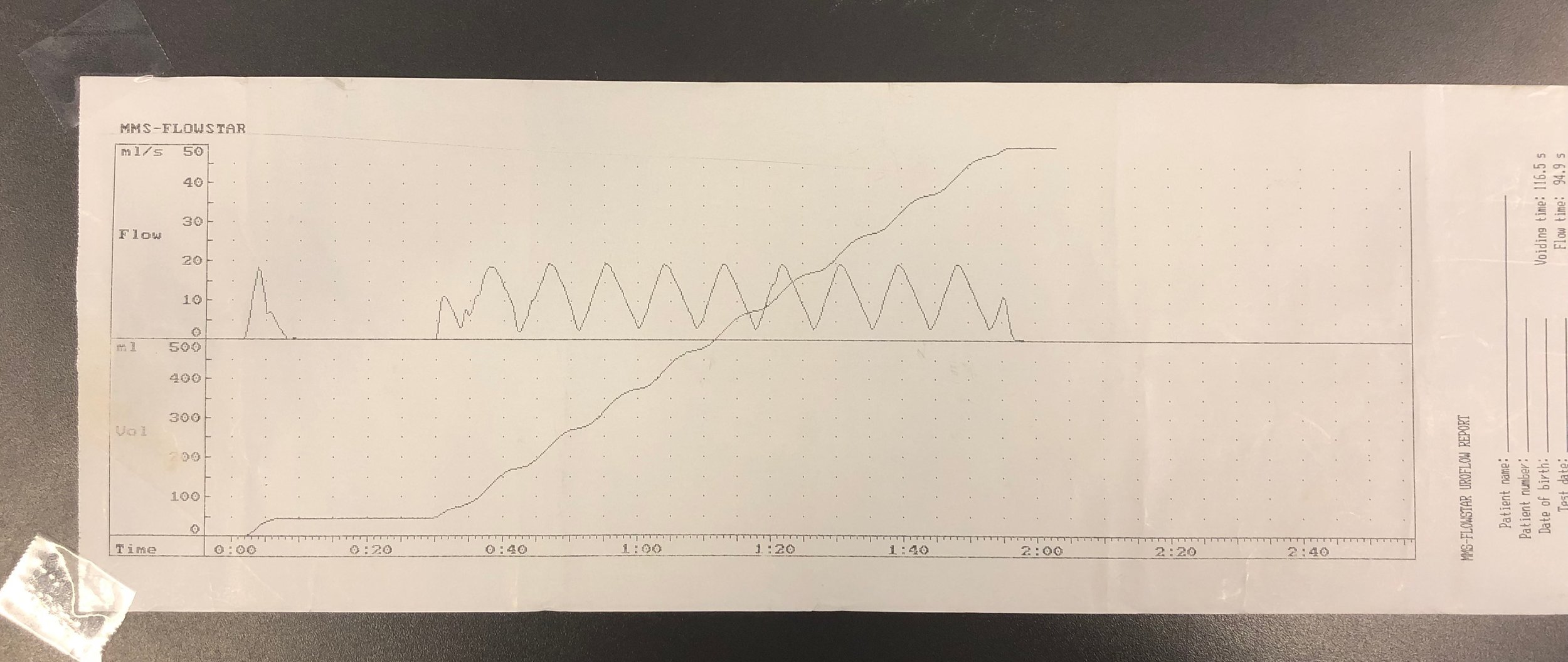 """Results from current hospital """"gold standard"""". Flow simulated using digitally controlled water pump, simulating sine wave."""