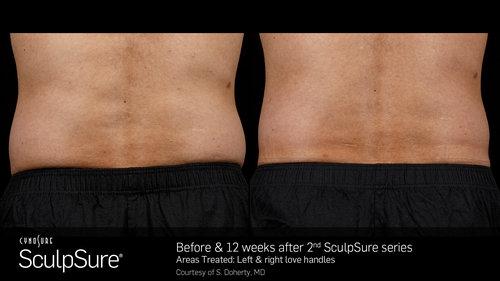 SculpSureBefore&After_SidebySide_Male3.jpg