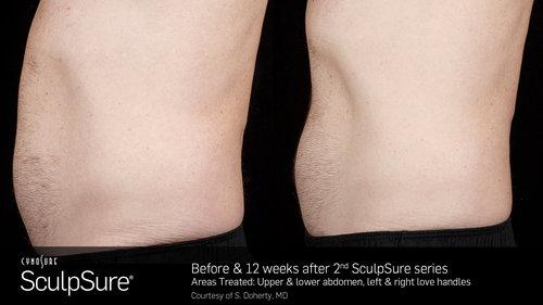 SculpSureBefore&After_SidebySide_Male9.2.jpg