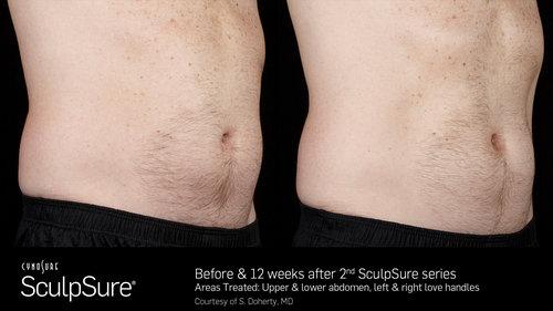 SculpSureBefore&After_SidebySide_Male9.jpg