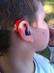 BTE hearing aid -