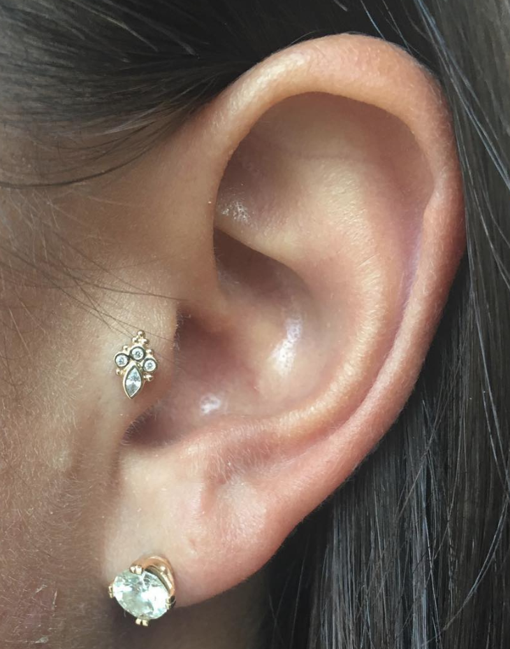 tragus.png
