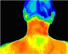 Digital Infrared Thermal Image (DITI) of the neck and shoulders