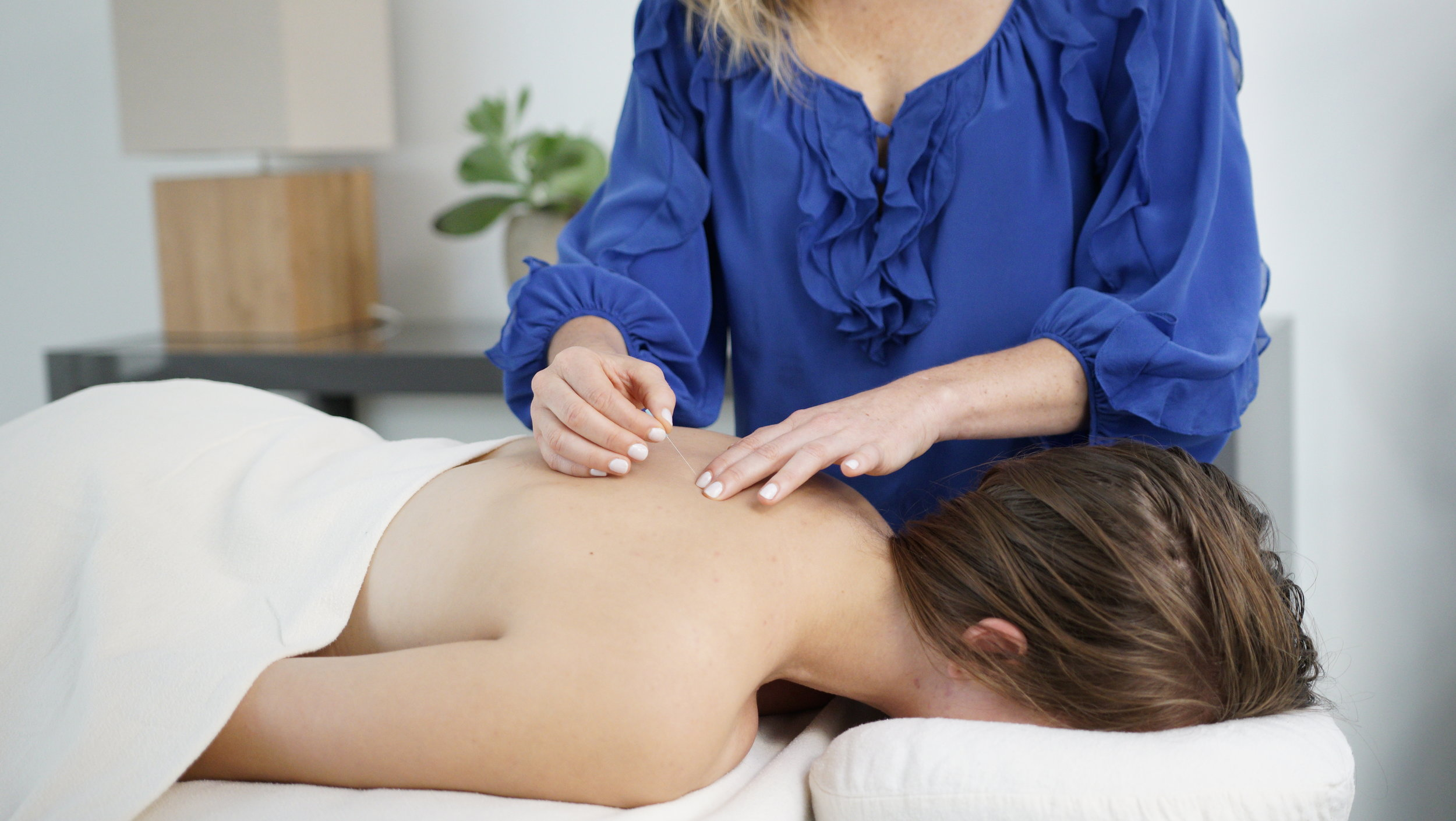 Acupuncture treatments at Prinz Acupuncture, NYC