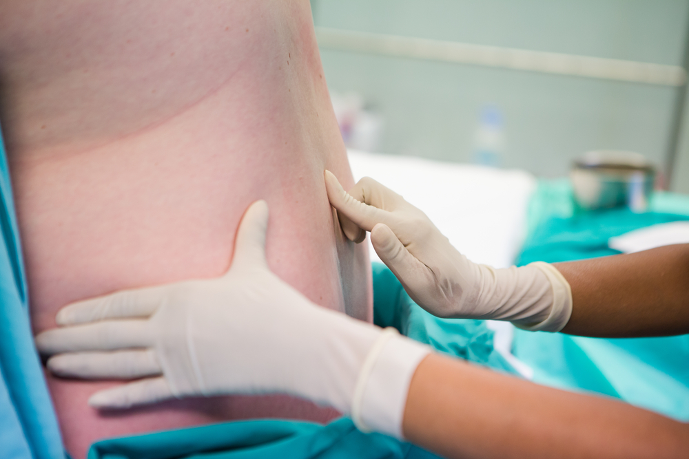Spinal Epidural Treatment