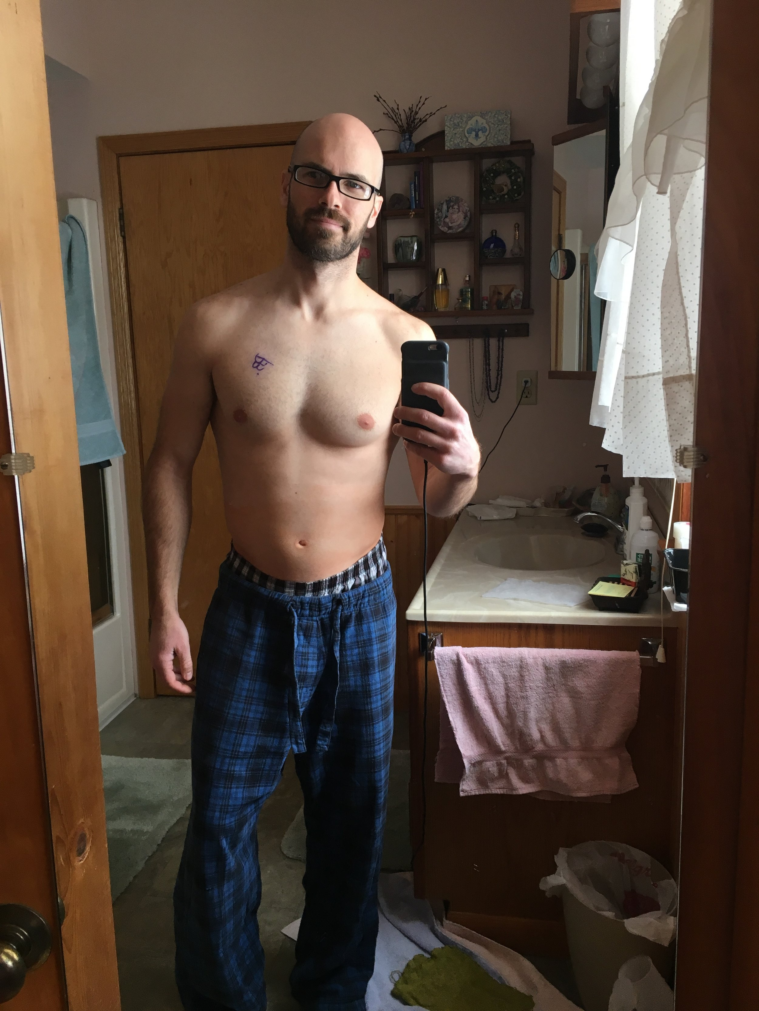 Post-op body still with my doctors autograph. Finally was able to stand on my own two feet!