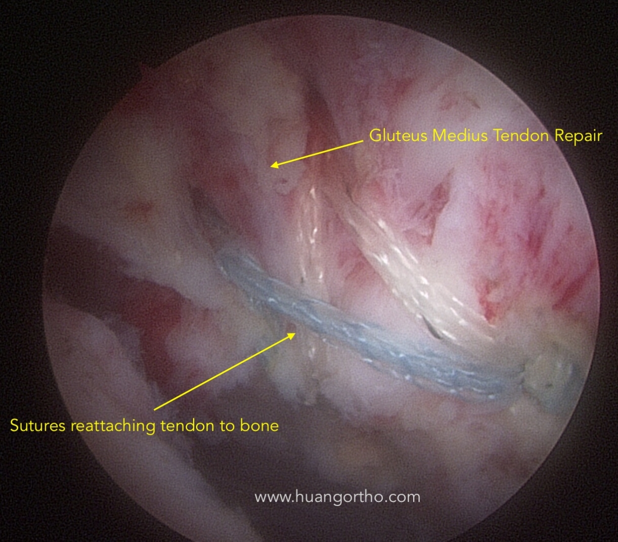 Arthroscopic view of final gluteus medius tendon repair.  This technique used a double row or bridging suture construct.