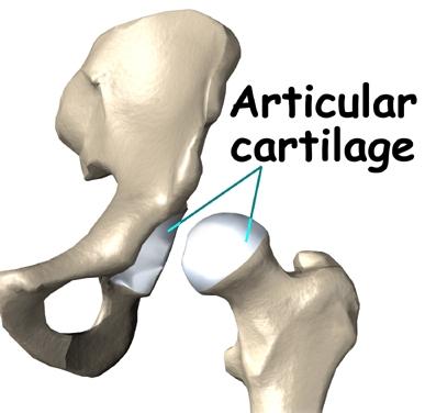 Hip Cartilage Cartoon.jpg