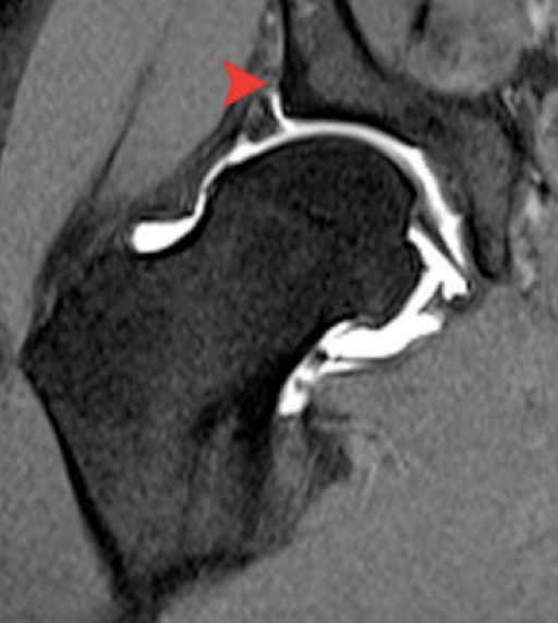 MRI Arthrogram showing complete labral tear
