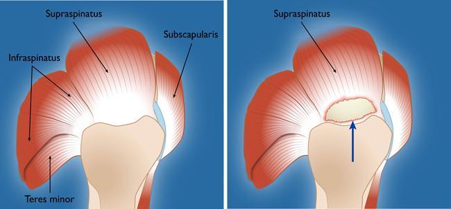 Rotator cuff tendon tear on right image