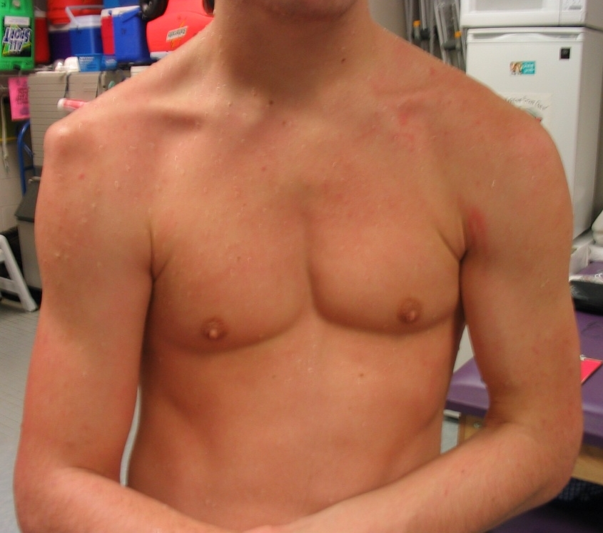 Picture of right shoulder dislocation. Notice the drooping of the arm and the squared off appearance of the shoulder.