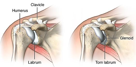 Shoulder Labrum Tear