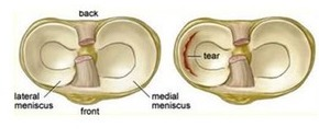 """Looking top down on the meniscus of the knee. They are """"C"""" shaped structures thicker on the periphery."""