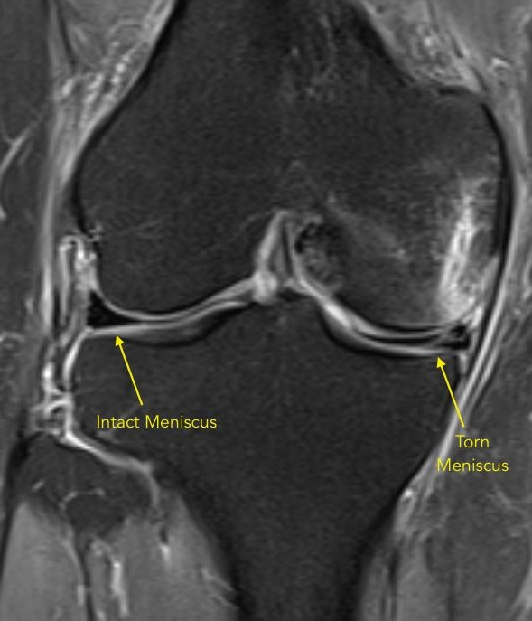 MRI showing torn medial meniscus and intact lateral meniscus