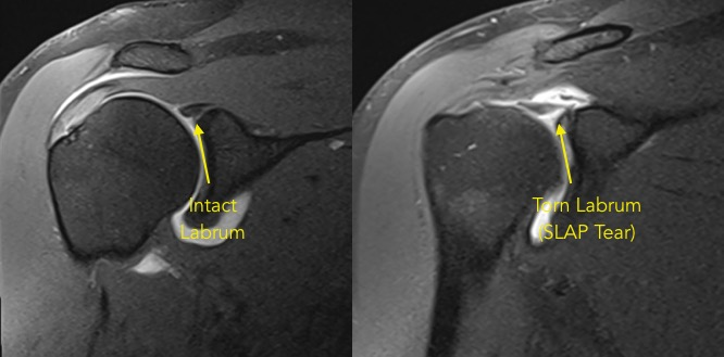 MRI Arthrogram (right) demonstrating a torn biceps anchor or SLAP tear.