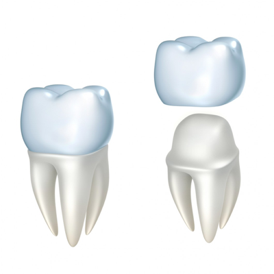 Dental-crowns-smile style.png