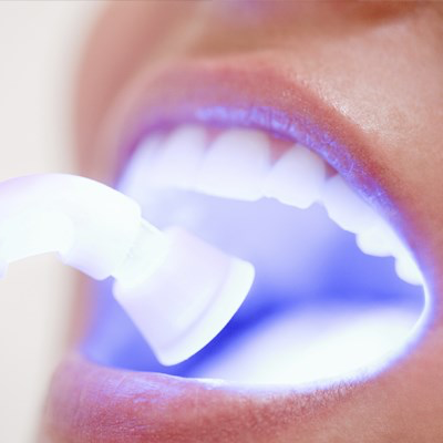 composite filling smiles tyle dental.png