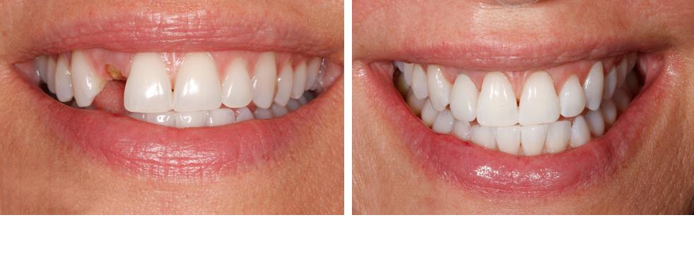 dental implants from $3000 Blackwood Dental.png