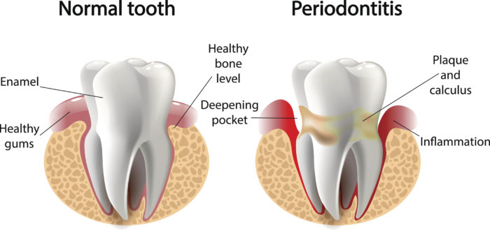 periodontal disease smile style.jpg