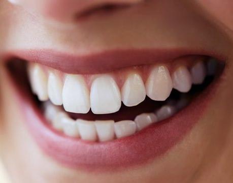porcelain veneers smiles style dental.jpg