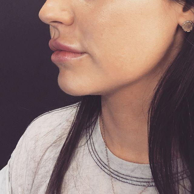 👄 The subtle art 👄⁠⠀ Our Doctors will expertly increase lip volume that will naturally flow with the rest of your face. Balance is everything!⁠⠀ Book your complimentary, no obligation consultation 📆.⁠ Link in bio 👆.⁠⠀ •⁠⠀ •⁠⠀ •⁠⠀ #aesthetics #botox #lipfillers #face #body #ivdrip #beauty #youth #botoxmanchester #manchester #juviderm #botoxforehead #antiaging #botoxinjections #nonsurgical #skincareroutine #nutrition #fitness #ELXR #elixir #doctor #skintonic #antiwrinkle #cosmetics #glowup #filler #aesthetics #skinspecialist #beforeandafter #skinobsessed