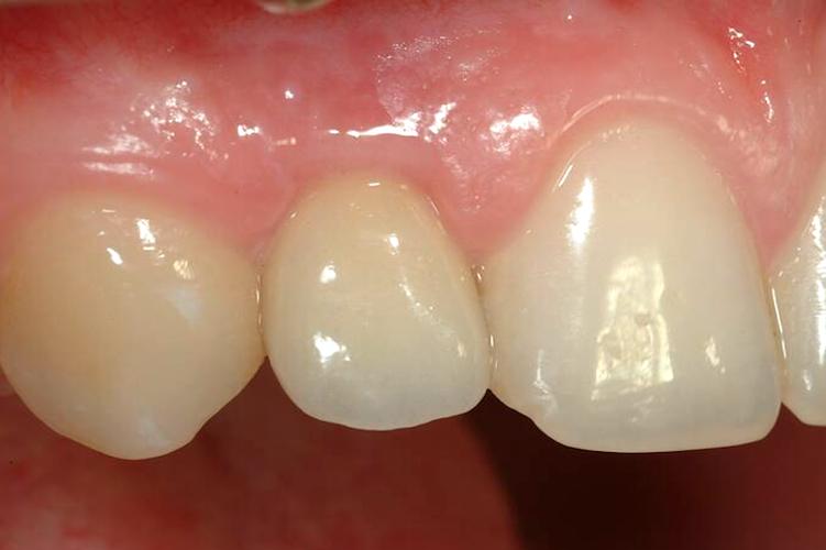 Ceramic crown on implant