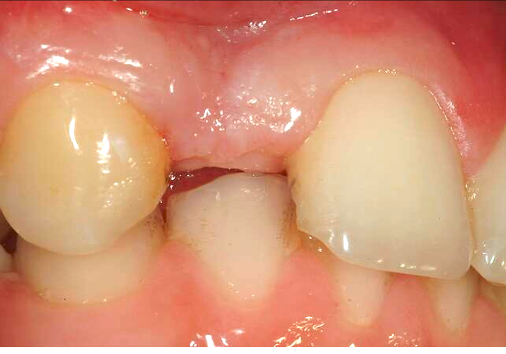 missing incisor tooth to be replaced by Implant