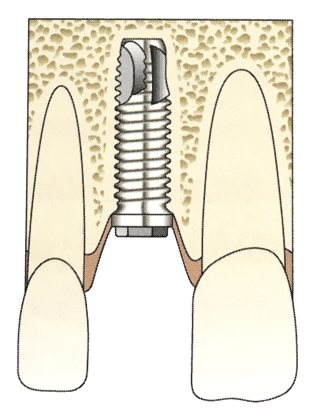 Implant in place