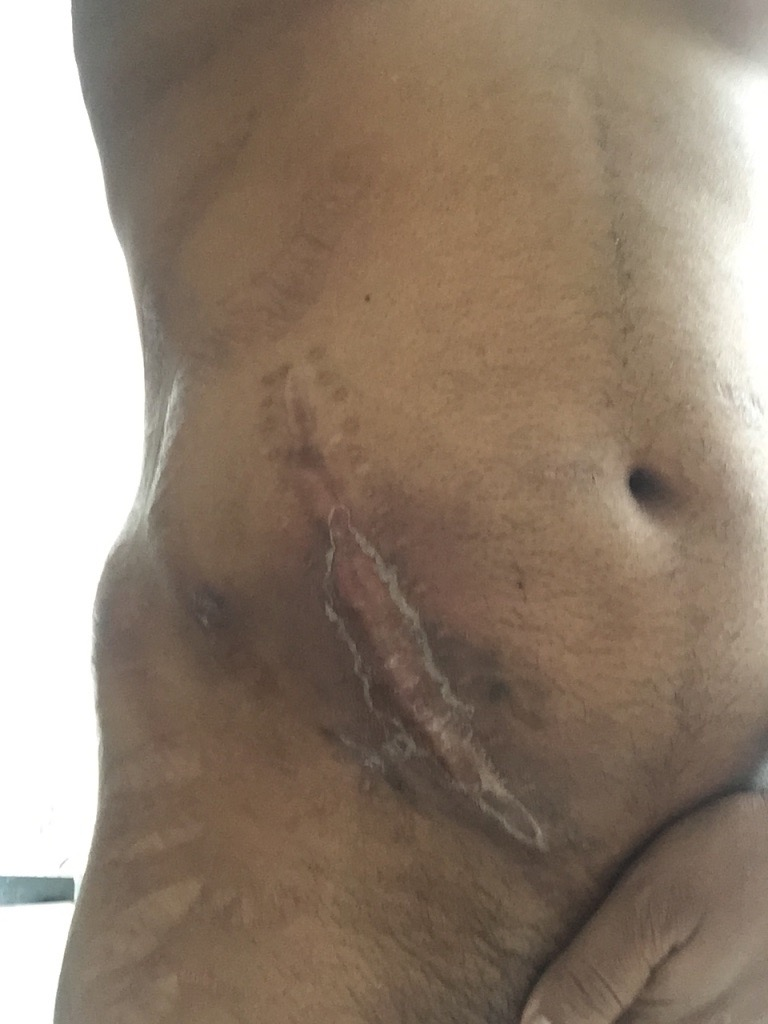 *** NOT ONE Portrayed in Story. Minus the scar with the peeling. Most all other ones were there *** // Nephrectomy Shown (Different Story).....