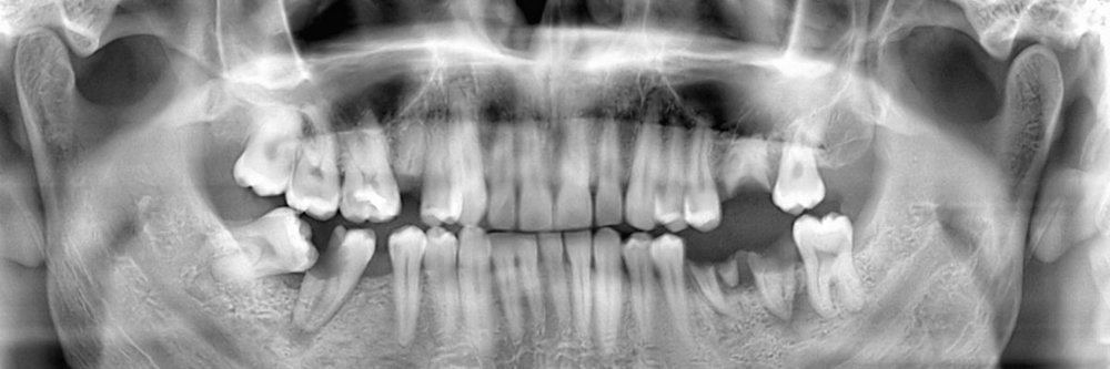 Wisdom Teeth Extraction Park Place Dental San Mateo