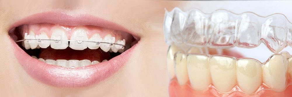 Which is better Invisalign or Braces_Header.jpg