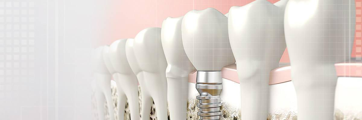 Dental Implants - Pacifica, CA