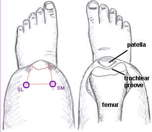 Knee-Tracking-Issues.jpg
