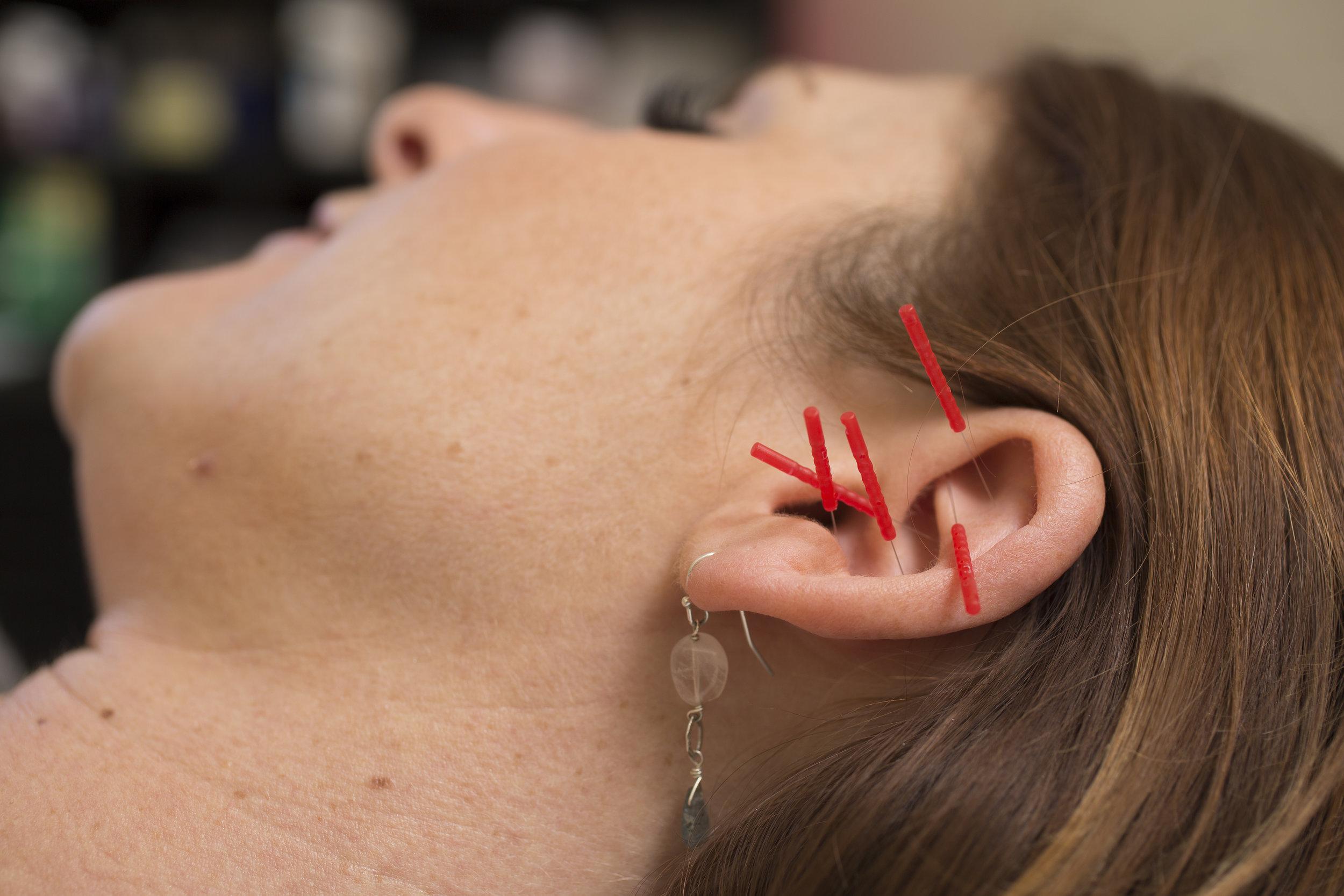NADA ear points