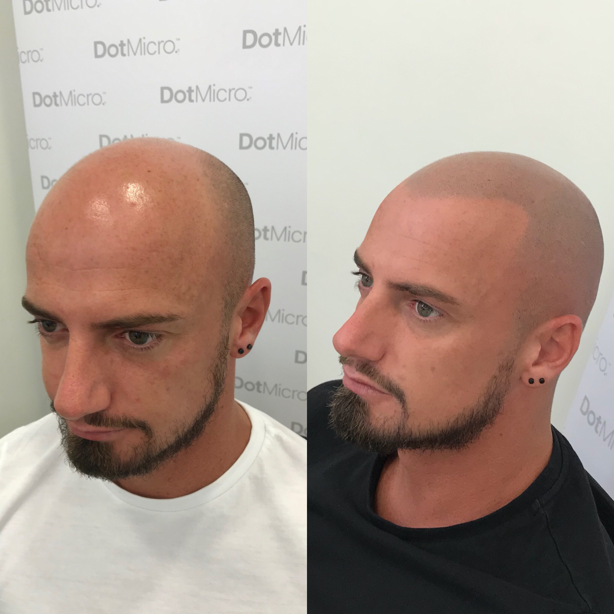 Before & after result