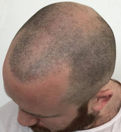 partialhairloss.jpg